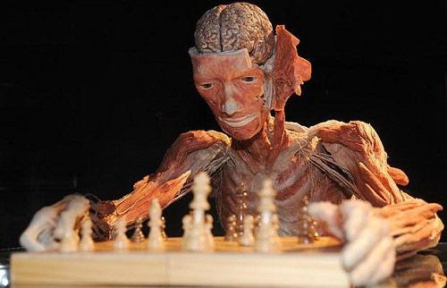globalist-chess